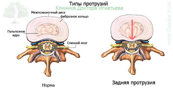 Дорзальная медианно парамедианная протрузия диска